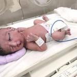 Bebê com Duas Faces Nasce no Paquistão