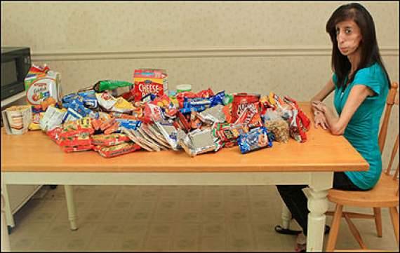 Garota que Come a Cada 15 minutos Para Sobreviver