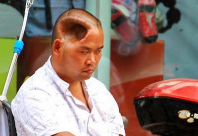Um chinês vive com um buraco enorme na cabeça