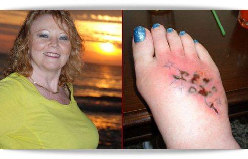 Uma mulher fez uma tatuagem e quase perdeu o pé