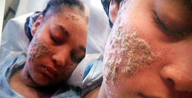 Doença muito bizarra fez uma mulher ter unhas aonde devia ter pelos