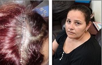Uma mulher com cérebro repleto de larvas passou por cirurgia de emergência