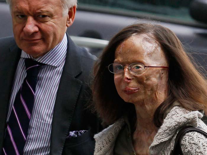 Mulher atacada com ácido sulfúrico diz que está se sentindo um monstro