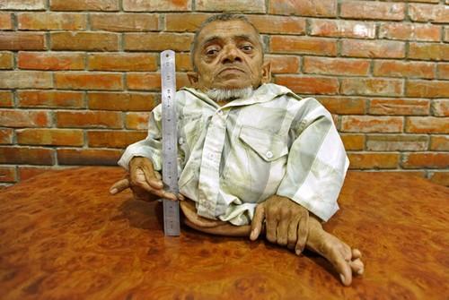 nepales-quer-ser-reconhecido-como-menor-homem-do-mundo (1)