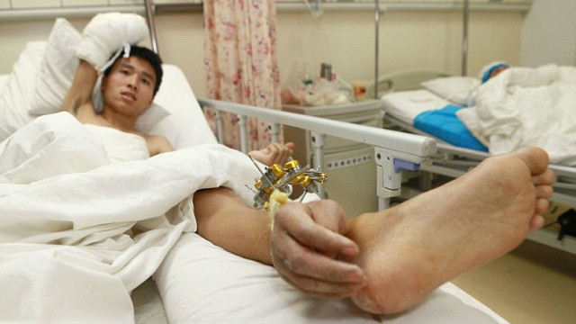 Chinês teve a mão cirurgicamente ligada ao seu tornozelo