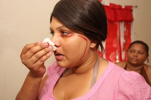 Médicos descobrem causa pela qual mulher chora sangue