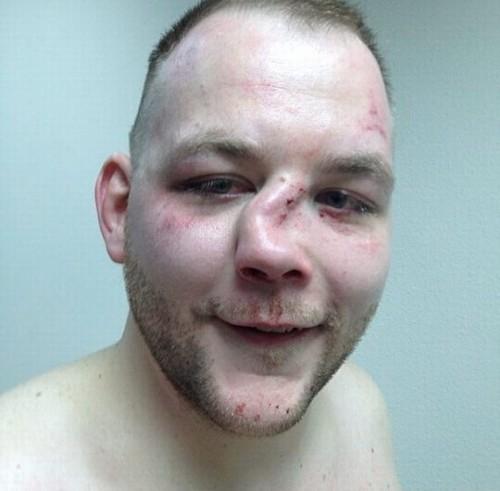 Após ser nocauteado lutador de MMA exibe nariz desfigurado