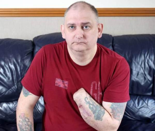 Homem corta a própria mão com guilhotina caseira e agora está ameaçando amputar o braço