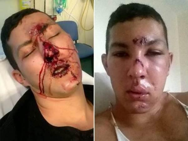 Jovem vira modelo após fazer cirurgia para reconstrução facial