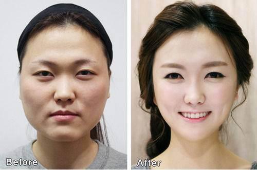 Pacientes de cirurgia plástica na Coréia do Sul ficam tão diferentes que precisam provar que são eles mesmos