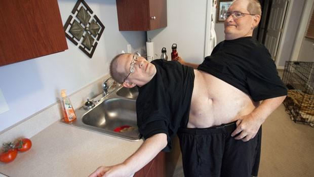Gêmeos siameses devem bater recorde de longevidade e entrar no guinness book