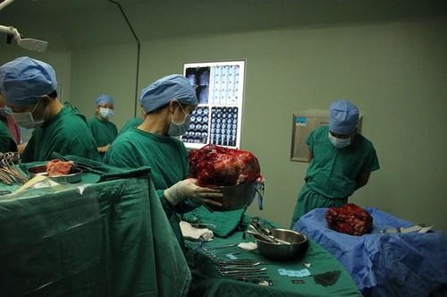 Garota de 12 anos é submetida a cirurgia para retirar tumor de 15kg