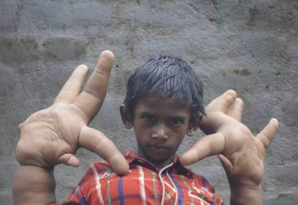Menino indiano tem mãos gigantes de 33 centímetros e 13 quilos