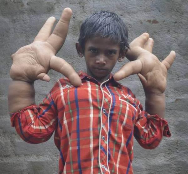 menino-indiano-tem-maos-gigantes-de-33-centimetros