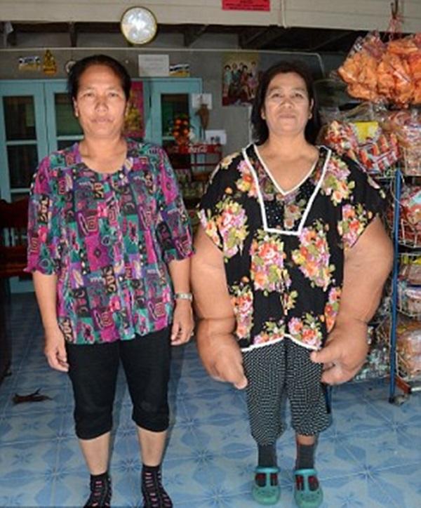 Doença rara faz com que tailandesa tenha as maiores mãos do mundo
