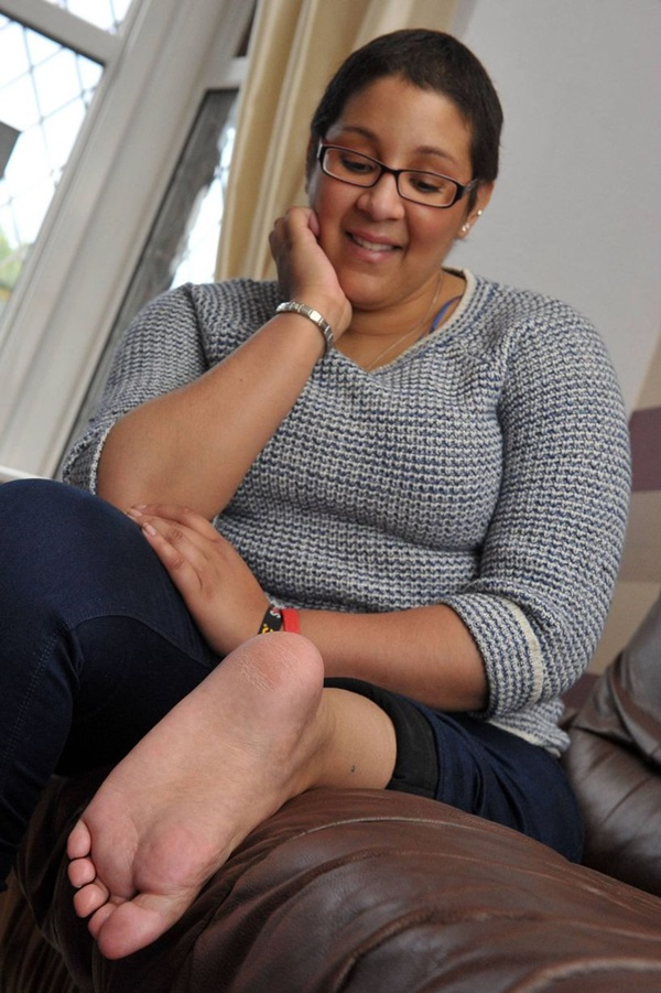 Americana tem pé colocado no joelho em cirurgia pioneira para conseguir usar prótese