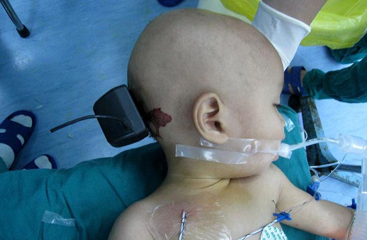 Criança de 1 ano crava carregador de celular na cabeça