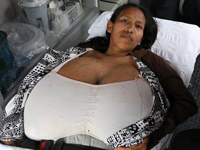 Peruana faz cirurgia para remover parte dos seios que não paravam de crescer