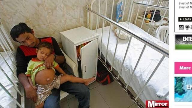 Descoberto feto de 25 cm no abdômem de menino de três anos no Peru