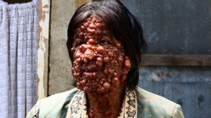 Doença rara Homem bolha