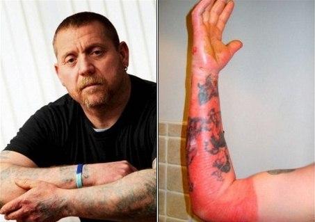 """Inglês ganha """"tatuagem"""" depois de choque elétrico"""