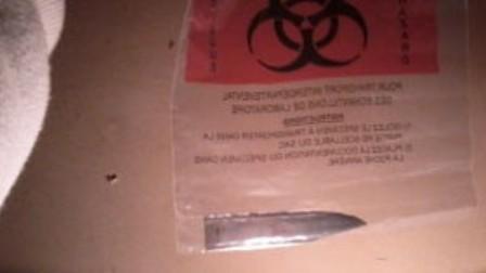 Homem só nota faca cravada nas costas três anos depois