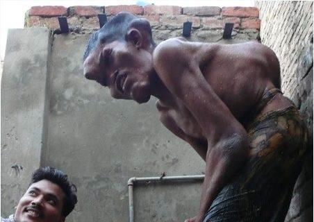 Doença rara deforma corpo de homem